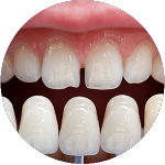 Porcelain Veneers Ipswich near Brisbane QLD