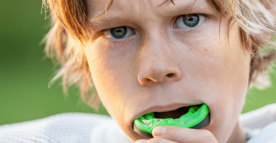 Do You Need an Athletic Mouthguard?